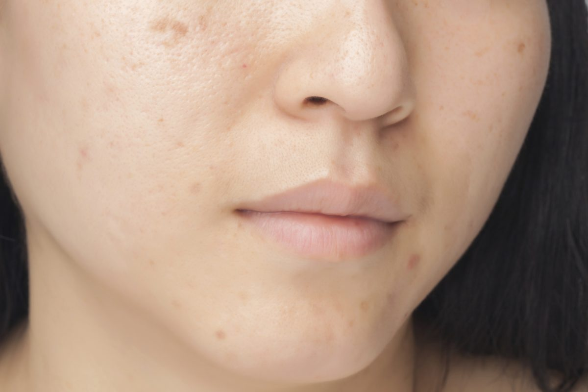 Acne Reversal for Back to School