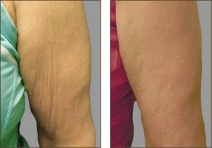 exilis-before-arms-sagging-skin-after-arms-smooth