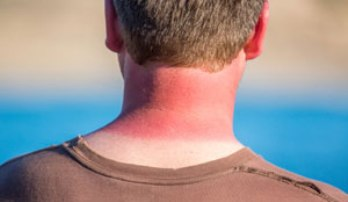 How to Undo Sun Burns